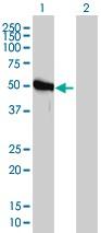 Western blot - Anti-GART antibody [4D6-1D5] (ab110002)