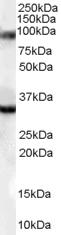 Western blot - LDB3 antibody (ab110003)