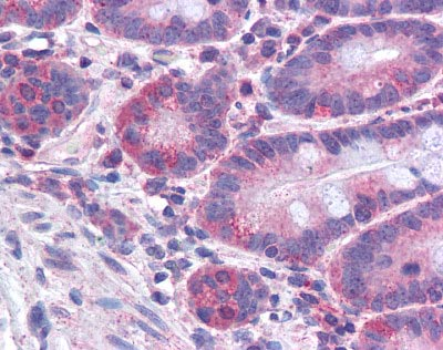 Immunohistochemistry (Formalin/PFA-fixed paraffin-embedded sections) - FACL4 antibody (ab110007)