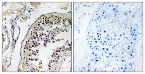 Immunohistochemistry (Formalin/PFA-fixed paraffin-embedded sections) - CNOT4 antibody (ab110013)