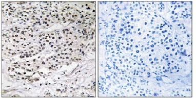 Immunohistochemistry (Formalin/PFA-fixed paraffin-embedded sections) - AZI1 antibody (ab110018)
