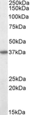 Western blot - Anti-Fas antibody (ab110021)