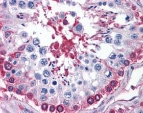 Immunohistochemistry (Formalin/PFA-fixed paraffin-embedded sections) - Glucose 6 phosphate isomerase antibody (ab110051)