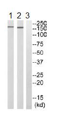 Western blot - ARHGEF11 antibody (ab110059)