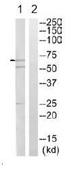 Western blot - Factor I antibody (ab110060)