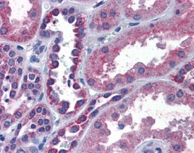 Immunohistochemistry (Formalin/PFA-fixed paraffin-embedded sections) - IREB2 antibody (ab110070)