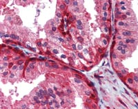 Immunohistochemistry (Formalin/PFA-fixed paraffin-embedded sections) - Wnt5a antibody [6F2] (ab110073)