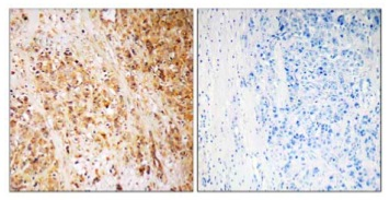 Immunohistochemistry (Formalin/PFA-fixed paraffin-embedded sections) - CD168 antibody (ab110075)
