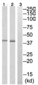 Western blot - Anti-FUT3 antibody (ab110082)
