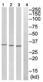 Western blot - HOXD8 antibody (ab110083)