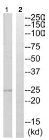 Western blot - Calcium binding protein 7 antibody (ab110086)