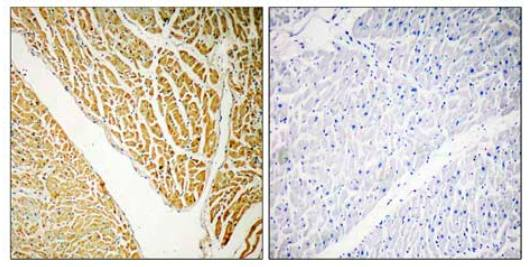 Immunohistochemistry (Formalin/PFA-fixed paraffin-embedded sections) - Calcium binding protein 7 antibody (ab110086)