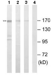 Western blot - ABCC12 antibody (ab110087)