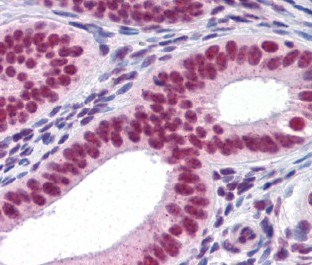Immunohistochemistry (Formalin/PFA-fixed paraffin-embedded sections) - RUNX2 antibody [3F5] (ab110102)