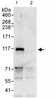 Immunoprecipitation - MYSM1 antibody (ab110109)