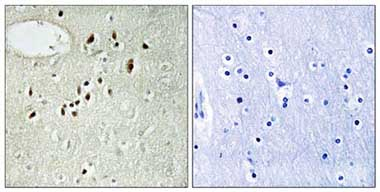 Immunohistochemistry (Formalin/PFA-fixed paraffin-embedded sections) - EMX2 antibody (ab110112)
