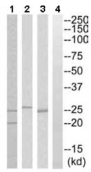 Western blot - PGRMC2 antibody (ab110125)
