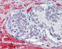 Immunohistochemistry (Formalin/PFA-fixed paraffin-embedded sections) - Calponin antibody (ab110128)