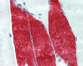 Immunohistochemistry (Formalin/PFA-fixed paraffin-embedded sections) - Troponin I fast + slow skeletal muscle antibody [12F10] (ab110132)