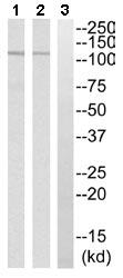 Western blot - CYLN2 antibody (ab110133)