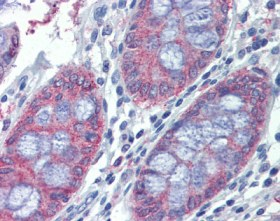 Immunohistochemistry (Formalin/PFA-fixed paraffin-embedded sections) - METTL7B antibody (ab110134)