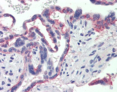 Immunohistochemistry (Formalin/PFA-fixed paraffin-embedded sections) - Sex Hormone Binding Globulin antibody (ab110140)