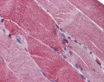 Immunohistochemistry (Formalin/PFA-fixed paraffin-embedded sections) - PACE4 antibody (ab110144)
