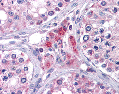 Immunohistochemistry (Formalin/PFA-fixed paraffin-embedded sections) - EYA4 antibody (ab110148)