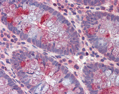 Immunohistochemistry (Formalin/PFA-fixed paraffin-embedded sections) - IQGAP2 antibody (ab110149)