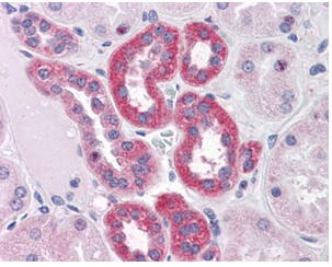 Immunohistochemistry (Formalin/PFA-fixed paraffin-embedded sections) - PARP3 antibody (ab110154)