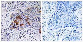 Immunohistochemistry (Formalin/PFA-fixed paraffin-embedded sections) - ADCY9 antibody (ab110159)