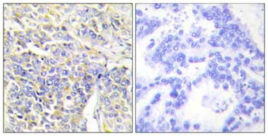Immunohistochemistry (Formalin/PFA-fixed paraffin-embedded sections) - Adenylate Kinase 1 antibody (ab110164)
