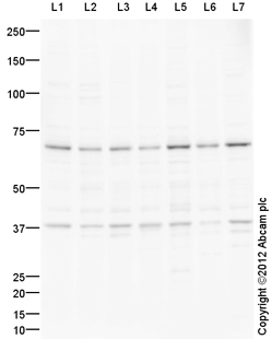 Western blot - Anti-Smad4 antibody (ab110175)