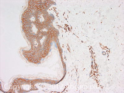 Immunohistochemistry (Formalin/PFA-fixed paraffin-embedded sections) - Anti-IQGAP1 antibody (ab110203)