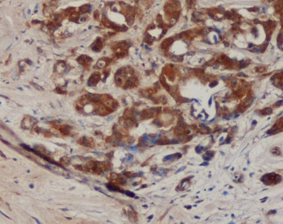 Immunohistochemistry (Formalin/PFA-fixed paraffin-embedded sections) - B7H4 antibody [MIH43] (ab110221)