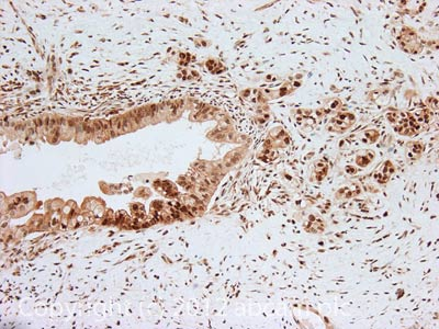 Immunohistochemistry (Formalin/PFA-fixed paraffin-embedded sections) - Anti-AKT2 (phospho S474) antibody (ab110231)