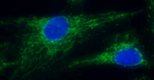 Immunocytochemistry/ Immunofluorescence - NDUFB4 antibody (ab110243)