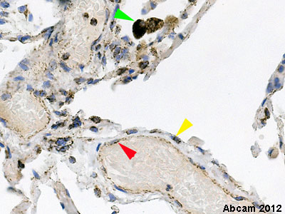 Immunohistochemistry (Formalin/PFA-fixed paraffin-embedded sections) - Anti-Cytochrome C oxidase subunit II antibody [12C4F12 ] (ab110258)