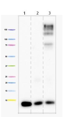 Western blot - Complex IV subunit VIIaHL antibody [6D7G8E5BH11 ] (ab110268)