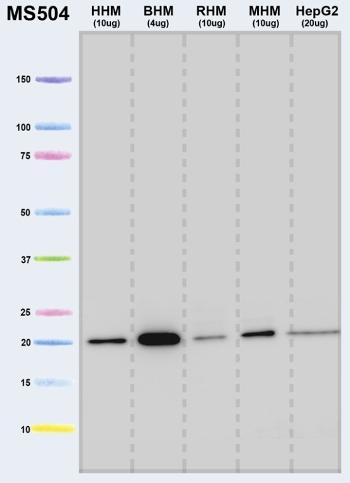 Western blot - Anti-ATP5H antibody [7F9BG1 ] (ab110275)