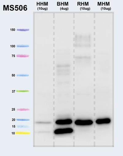 Western blot - Anti-ATPase Inhibitory Factor 1 antibody [5E2D7] (ab110277)