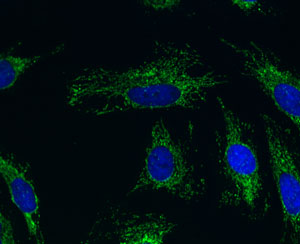 Immunocytochemistry - ACADM antibody [3B7BH7] (ab110296)