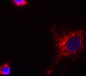 Immunocytochemistry - HADHB antibody [5C3AB7 ] (ab110301)