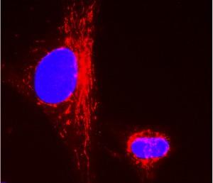 Immunocytochemistry - CPS1 antibody [2E4AE11 ] (ab110303)