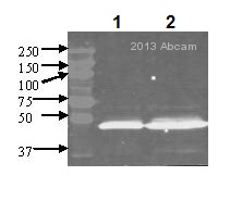 Western blot - Anti-DLST antibody [9F4BD5 ] (ab110306)