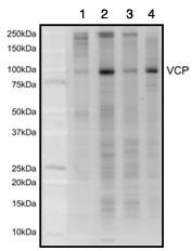 Immunoprecipitation - VCP antibody [3E8DC11 ] (ab110308)