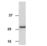 Western blot - Anti-VDAC1/Porin antibody [16G9E6BC4] - Mitochondrial Loading Control (ab110326)