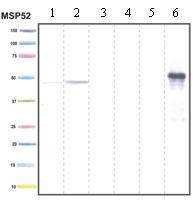 Western blot - PDK4 antibody [1C2BG5 ] (ab110336)