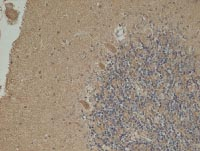 Immunohistochemistry (Formalin/PFA-fixed paraffin-embedded sections) - NNT antibody [8B4BB10 ] (ab110352)