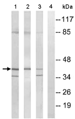 Western blot - PRP18 homolog antibody (ab110366)